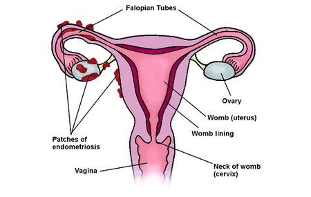 endometriosis-womb-diagram