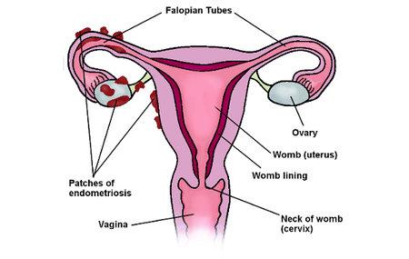 endometriosis-womb-diagram